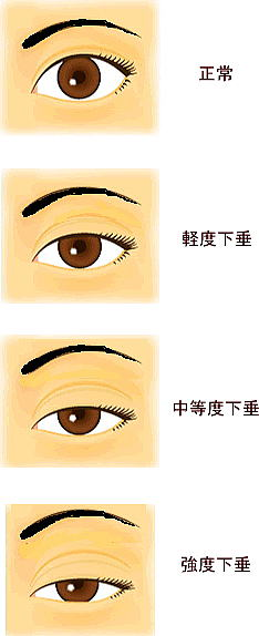眉と目の間が離れている、または離れてきた。 ・左右で目の大きさが違う ・車を運転していて信号を見上げるのがつらい。 ・アゴを上げて物を見る